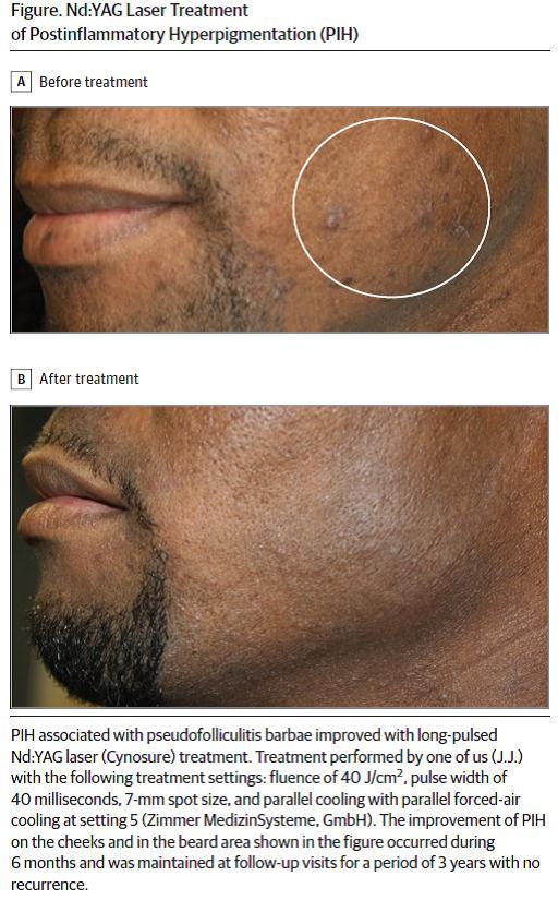 Điều trị Tăng sắc tố sau viêm bằng Laser - CÁCH NHÌN TOÀN DIỆN